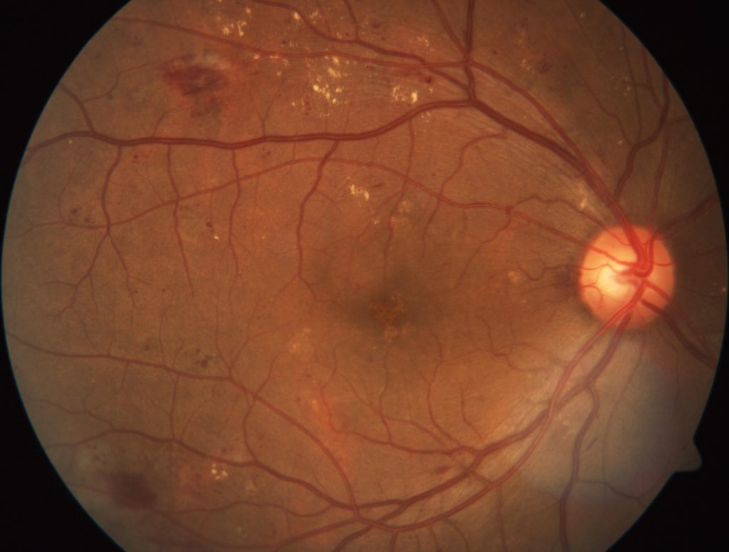 A scan of a retina showing signs of diabetic retinopathy.