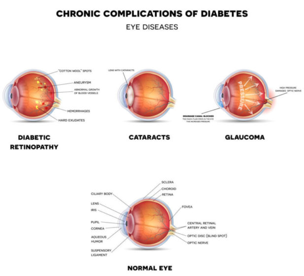 Diabetic Eye Diseases. Diabetic retinopathy cataract and glaucoma. At the bottom line healthy eye detailed anatomy.